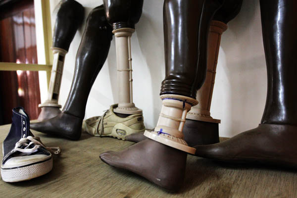 Prosthetic legs in the gait training room at the Physical Rehabilitation Reference Centre in Juba, South Sudan